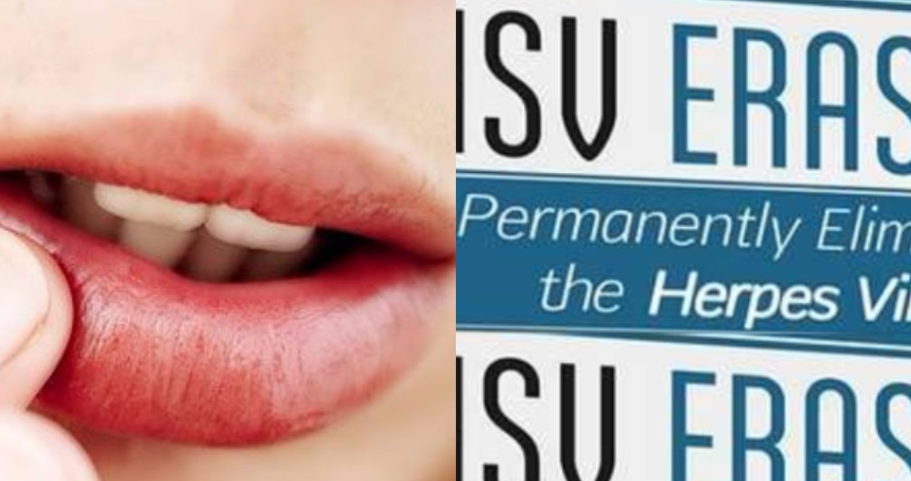Herpes erased hsv eraser program review the facts herpes erased review fandeluxe Gallery